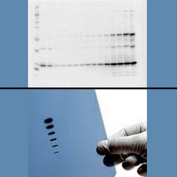 Protein Quantification & Western Blotting