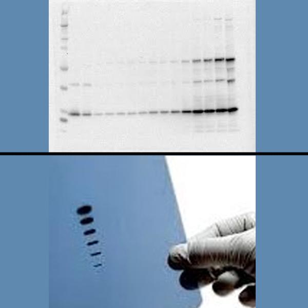 Protein Quantification & Western Blotting
